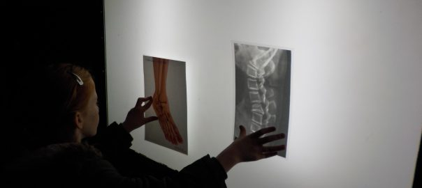 Finding out about X-Rays at Thackray Medical Museum